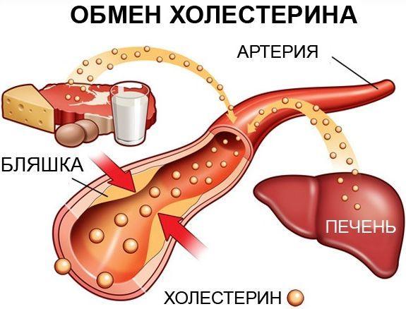 причины развития атеросклероза