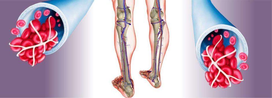 склероз нижних конечностей